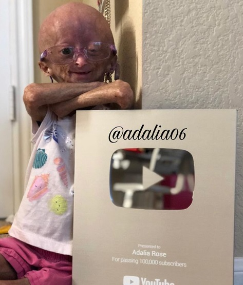 Adalia Rose Wiki, Bio, Age, Dating, Family, Youtube, Videos and Progeria